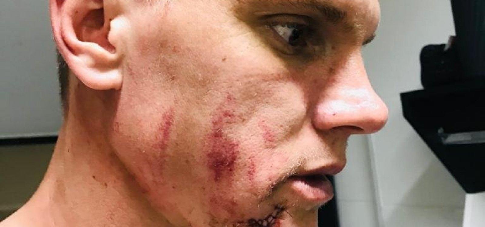 [Goleiro do Bahia leva cinco pontos no rosto após choque com zagueiro do Vasco]