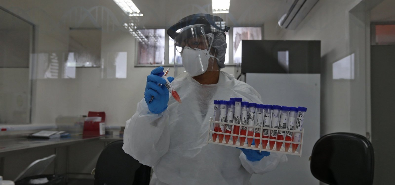 [Laboratório Central da Bahia identifica variante peruana da Covid-19 no estado]