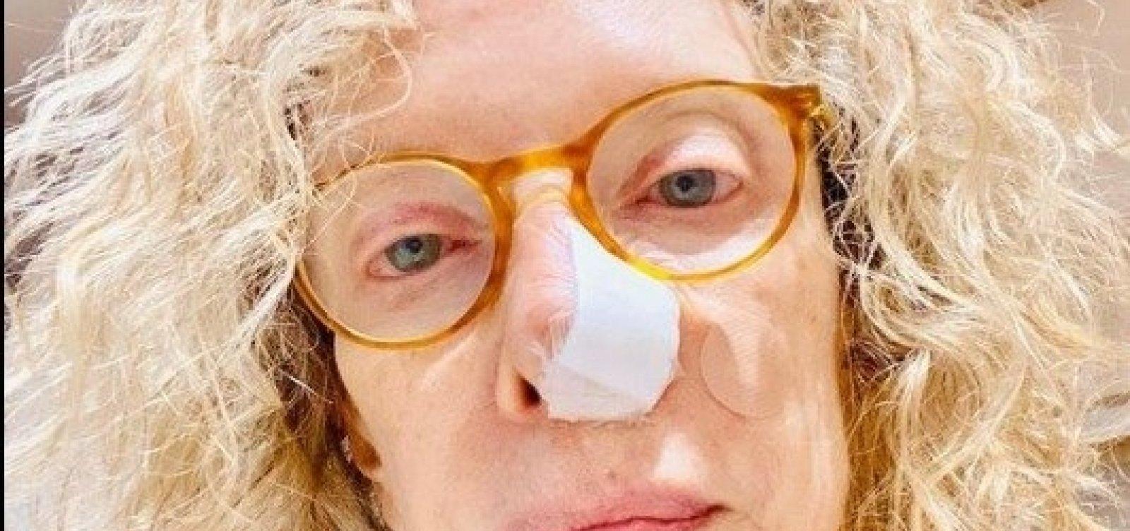 [Marília Gabriela passa por cirurgia depois de descobrir câncer no nariz ]