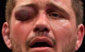 [Lutador fica desfigurado após ser atingido no olho durante evento do UFC]