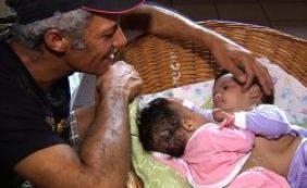 [Gêmeas siamesas de Itamaraju permanecem em estado grave em Goiás ]