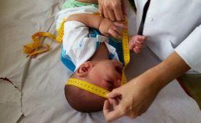 [Mutirão atende bebês com microcefalia para detectar problemas auditivos]