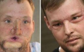 [Americano recebe transplante de rosto e volta a usar espelho após 10 anos]