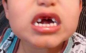 [Criança de 4 anos presta depoimento após perder dois dentes na escola]