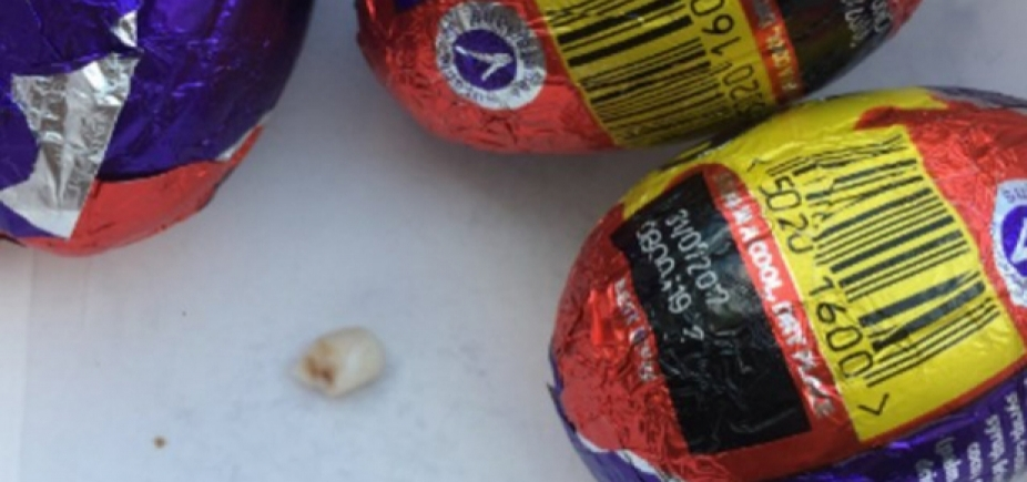 [Mulher encontra dente em ovo de Páscoa: 'Pensei que fosse uma noz']