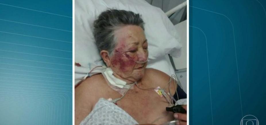 [Absurdo! Idosa de 78 anos é agredida por enfermeiro na UTI]
