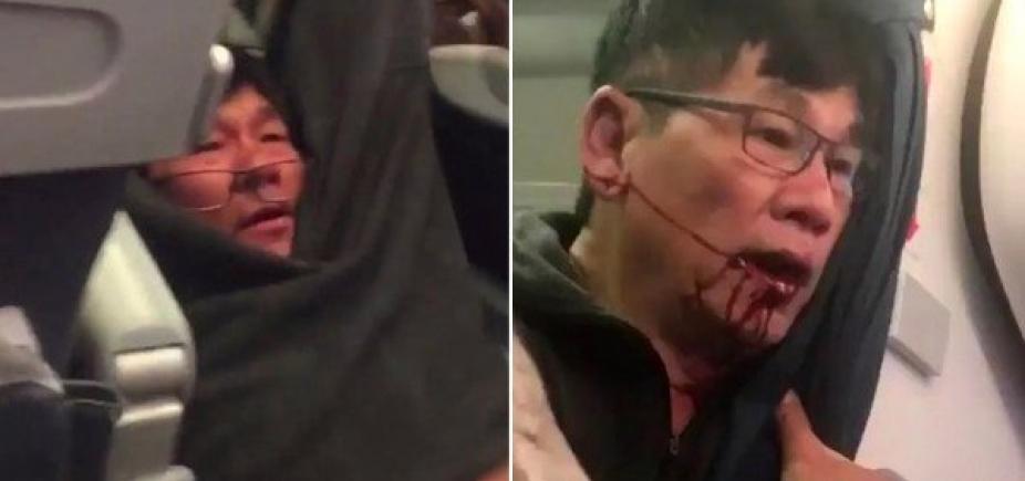 [Passageiro tirado à força de avião da United faz acordo \'amigável\' com a companhia]