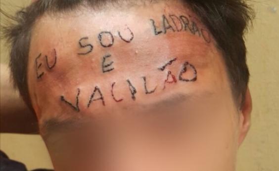 Menino que teve a testa tatuada faz primeira sessão de remoção em São Paulo