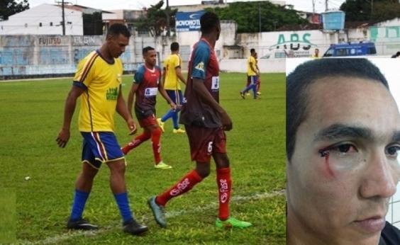 TJDF suspende 14 pessoas após agressão a árbitros no Intermunicipal