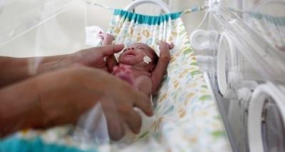 Nascimentos no Brasil têm queda pela primeira vez desde 2010