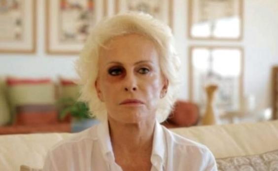 Ana Maria Braga explica imagens com olho roxo; veja