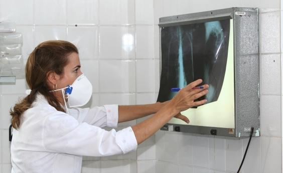 Brasil tem um terço dos casos de coinfecção de tuberculose e HIV do mundo