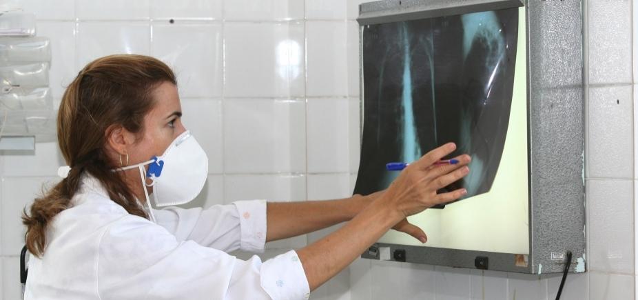 [Brasil tem um terço dos casos de coinfecção de tuberculose e HIV do mundo]
