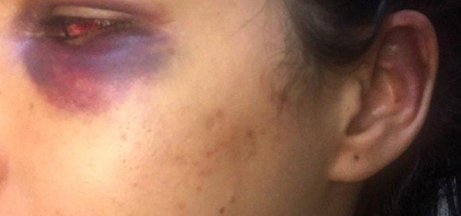[Jovem denuncia agressão de ex-marido filho do prefeito de Salinas da Margarida]