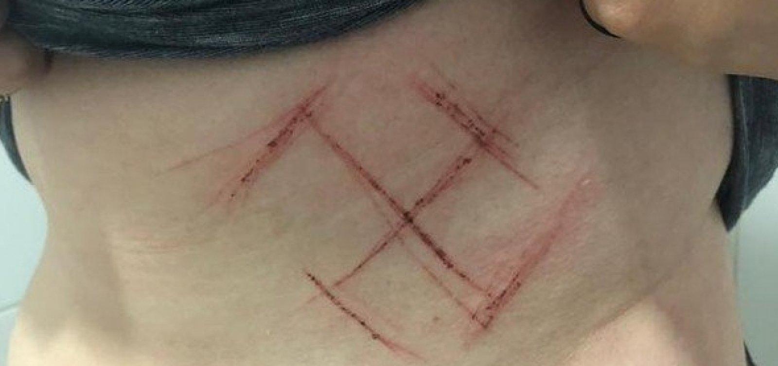 """[Jovem de 19 anos é agredida e marcada com canivete por vestir camiseta com """"Ele Não""""]"""
