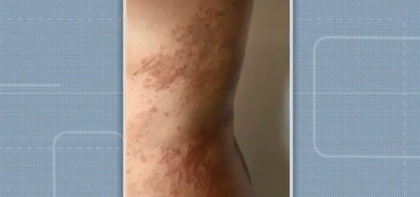 [Mais de 100 pessoas já foram diagnosticadas com doença 'misteriosa' no bairro de Patamares, em Salvador]