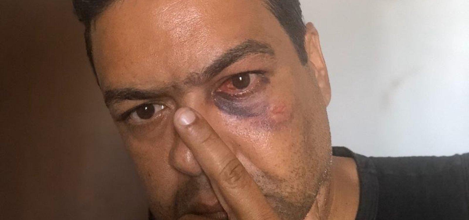 [Simões Filho: Vereador é suspeito de agredir outro parlamentar durante reunião na CCJ]