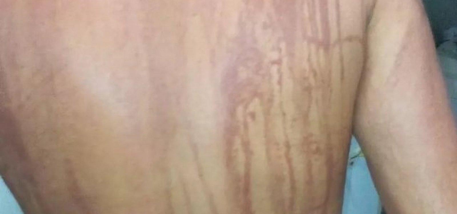 [Ilhéus: Secretaria descarta intoxicação por óleo em turista de MG ]