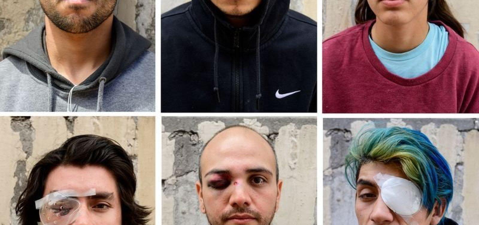 [Mais de 200 pessoas perderam visão em protestos no Chile]