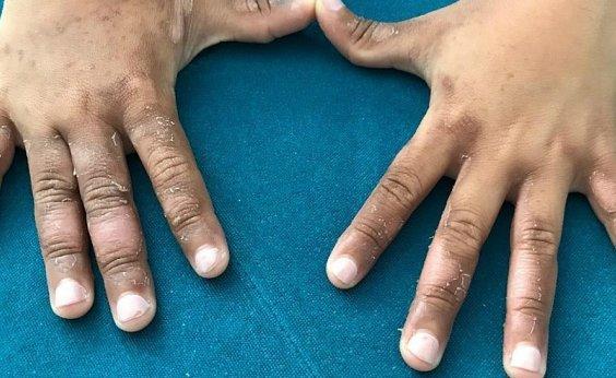 [Menina de 8 anos fica com manchas e bolhas após banho de mar na Ilha de Itaparica]