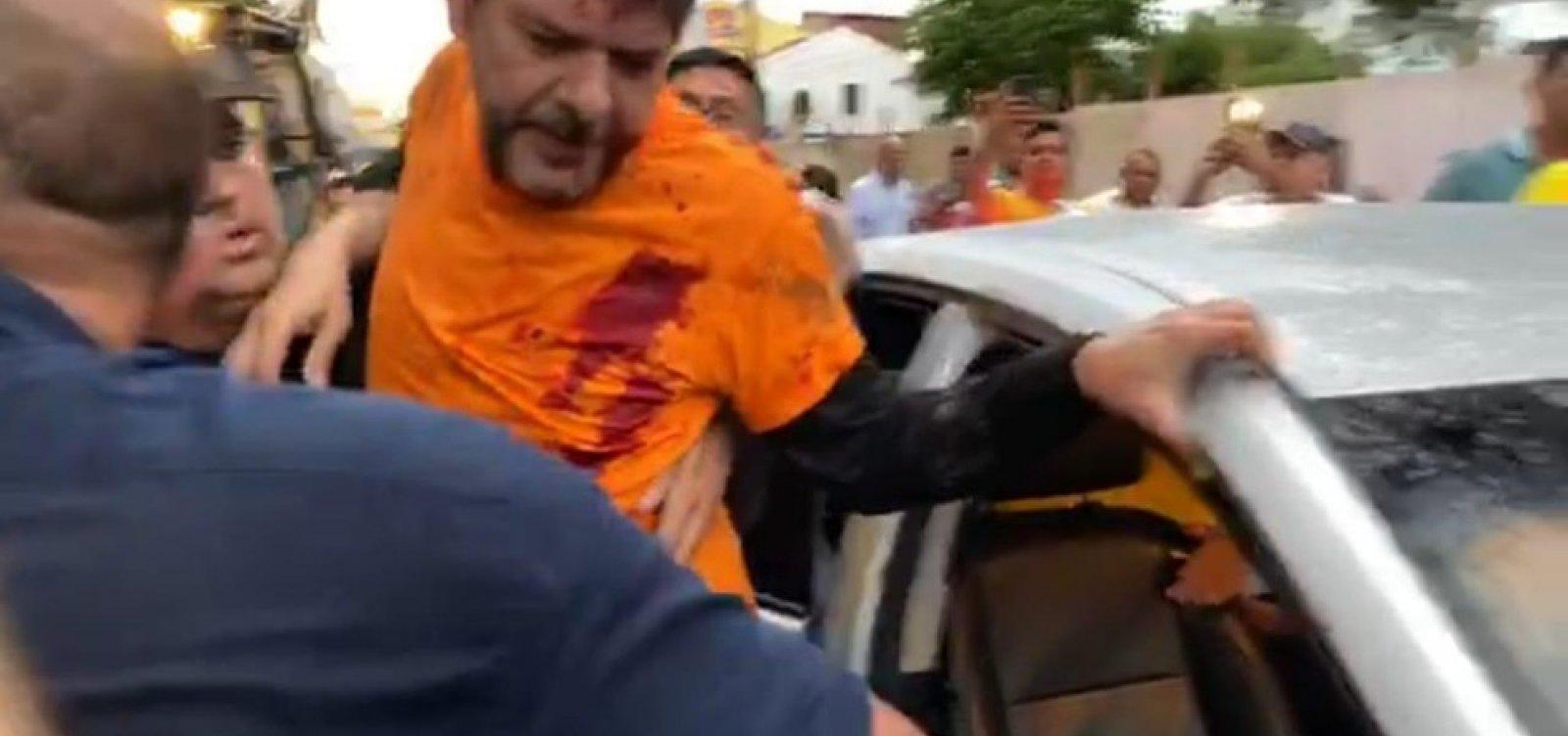 [Assessoria confirma que Cid Gomes foi baleado com arma de fogo e não bala de borracha]