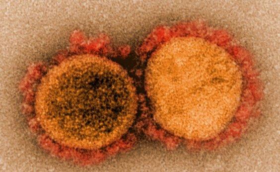[Bairros Caixa D'agua e Cardeal registram primeiros casos de coronavírus]