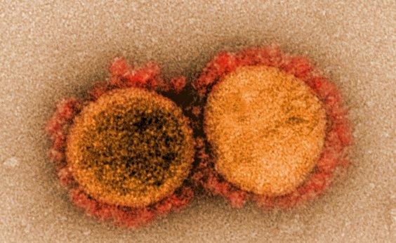 [Bahia registra quarta morte por coronavírus; vítima tinha 79 anos]