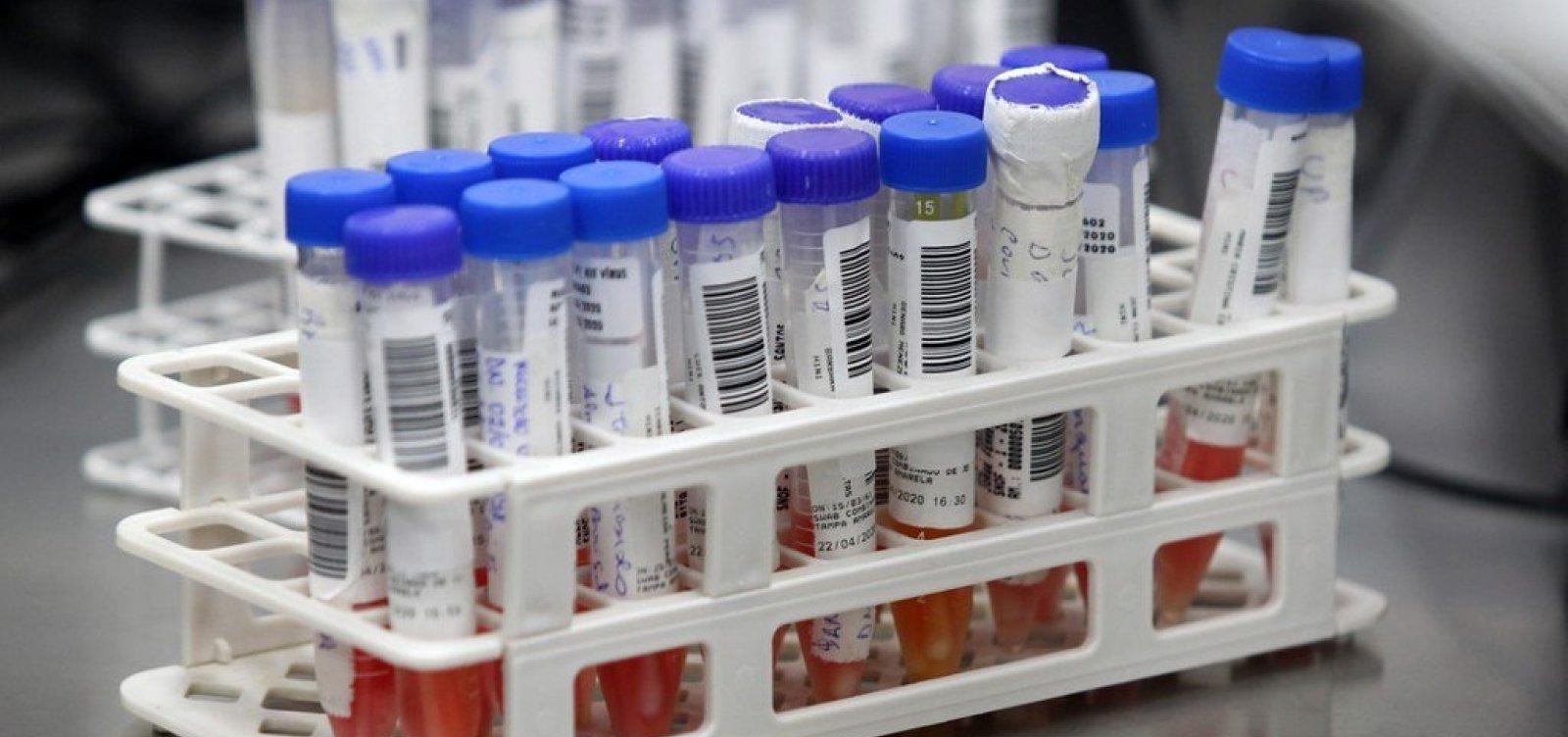 [Pandemia de coronavírus já matou 300 mil pessoas no mundo]