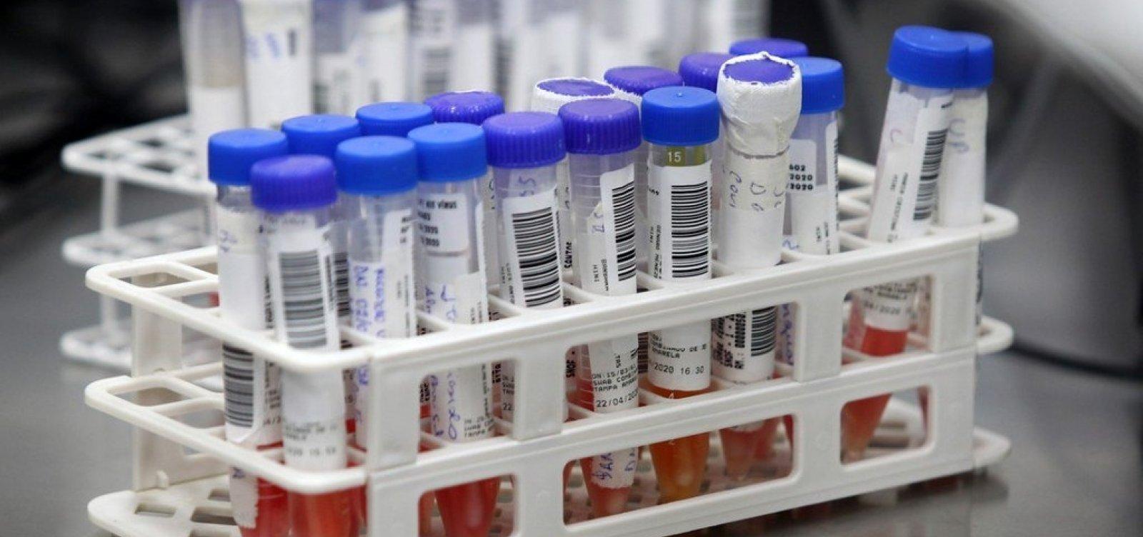 [OMS garante que pessoas assintomáticas podem transmitir coronavírus]