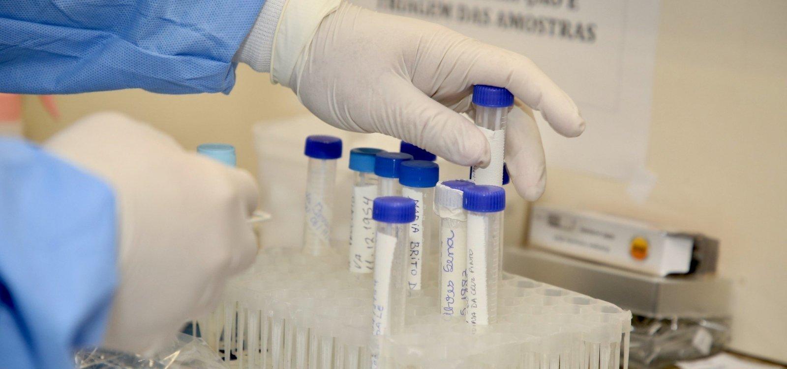 [Vacina de Oxford contra coronavírus começa a ser testada no Brasil]