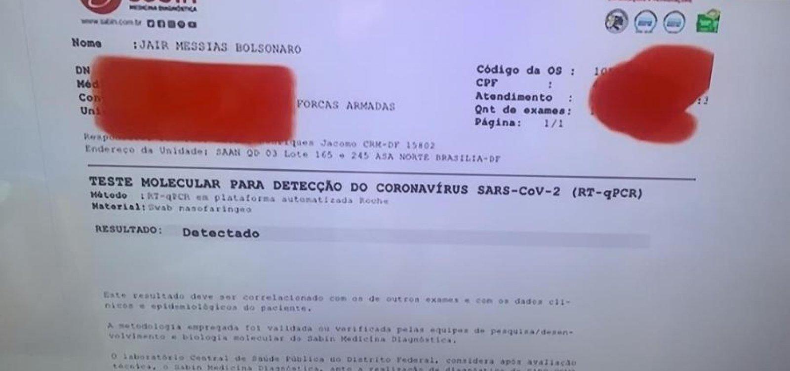 [Bolsonaro usou nome verdadeiro em exame para covid-19 pela primeira vez]