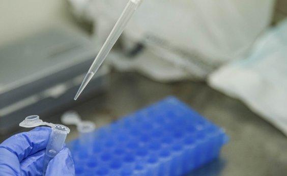 [Brasil entra em acordo mundial de vacinas contra coronavírus, diz OMS]