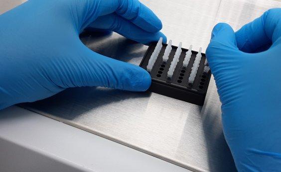 [Voluntários de testes de vacina russa apresentam imunidade contra o coronavírus]