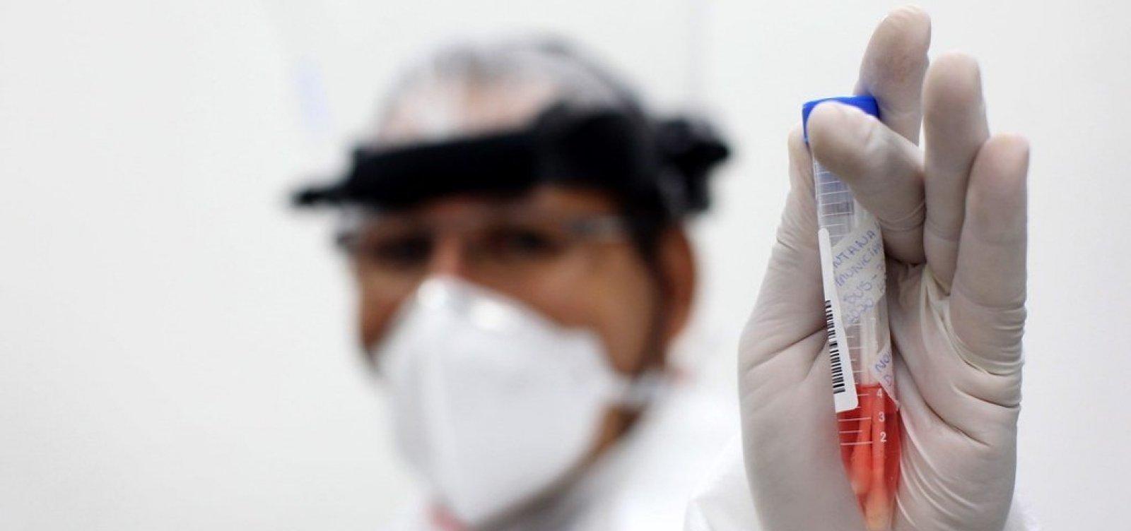[Bahia registra mais 2.849 casos de Covid-19 e 25 mortes pela doença nas últimas 24h]